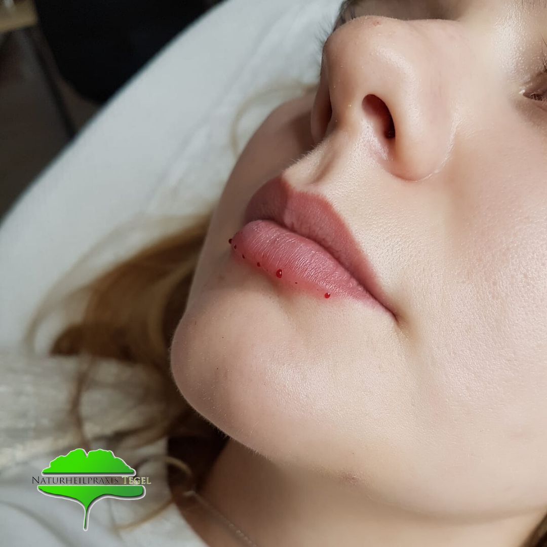 Nachher Lippenunterspritzung