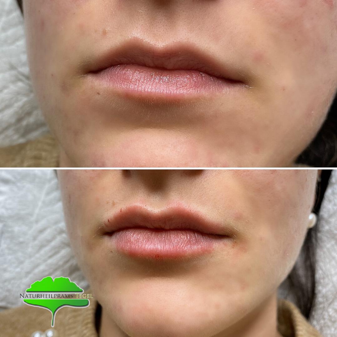 Vorher- Nachher Lippenunterspritzung